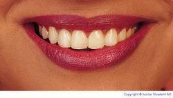 Grauschimmer auf Zähnen